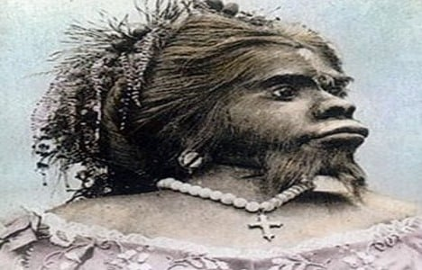 'Ape woman' returned from Oslo to Mexico