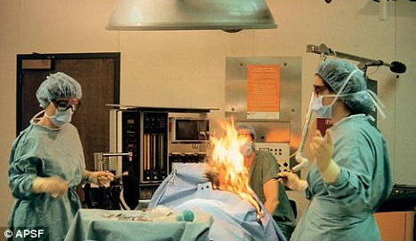 Doctors ignite patient during heart operation